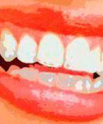 ¿Cuánto cuesta un blanqueamiento dental?