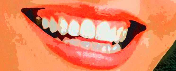 Cu nto cuesta un blanqueamiento dental for Cuanto cuesta un segway