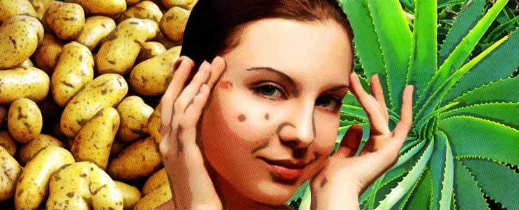 Las manchas de pigmento que esto y como curar