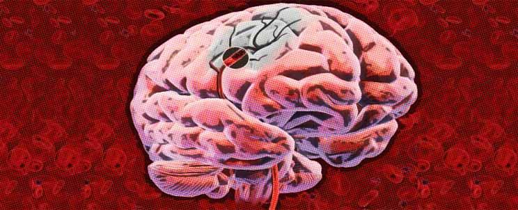 """¿Cómo prevenir y evitar un ACV o """"Accidente Cerebro Vascular""""?"""