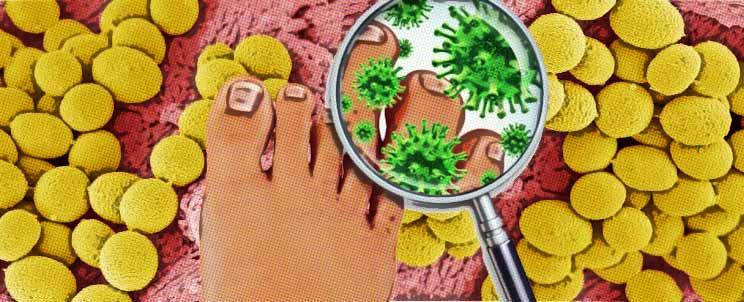 Las medicinas al hongo entre los dedos de los pies