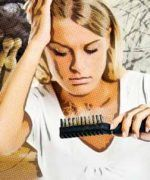tratamientos de la alopecia seborreica