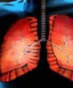 Cuidados del sistema respiratorio
