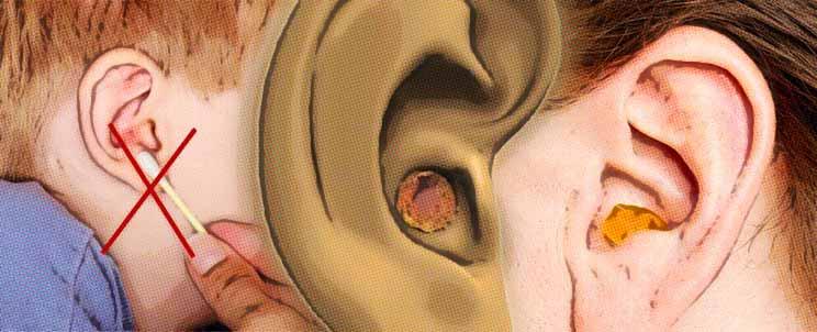 evitar el exceso de cera y los tapones en los oidos