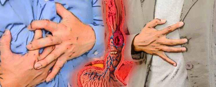 Remedios caseros para hernia de hiato