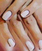 Rayas verticales en las uñas