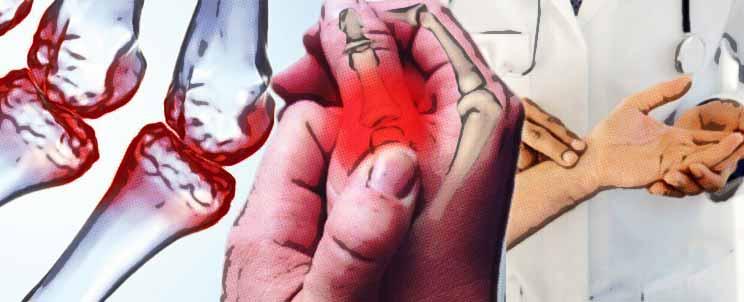 reuma en las manos