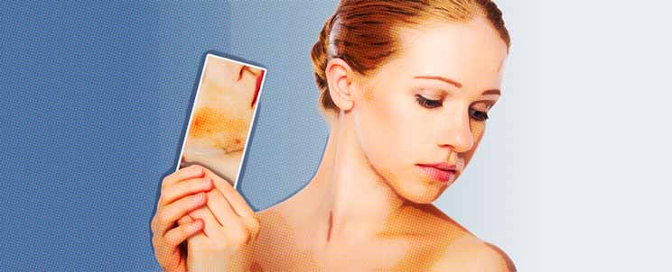 dermatitis atópica de adultos