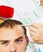 terapia de plasma rico en plaquetas para la alopecia