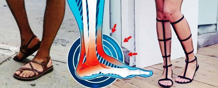 problemas que ocasionan las sandalias