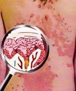 eczema marginado de hebra