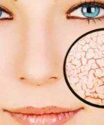 dermatitis psoriasiforme